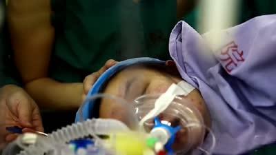 熊猫血妈妈艰难产子记 心衰孕妇生命危在旦夕