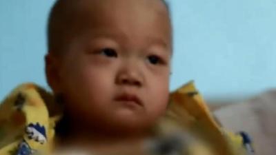 两岁女童身藏十斤肉瘤被遗弃 高二男生发烧整月突发心脏病危在旦夕