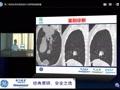 6.24 西京医院第二场读片会网络视频直播